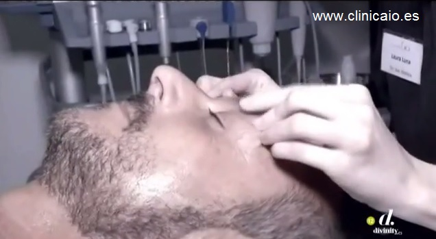 tratamiento facial flash para cazamariposas