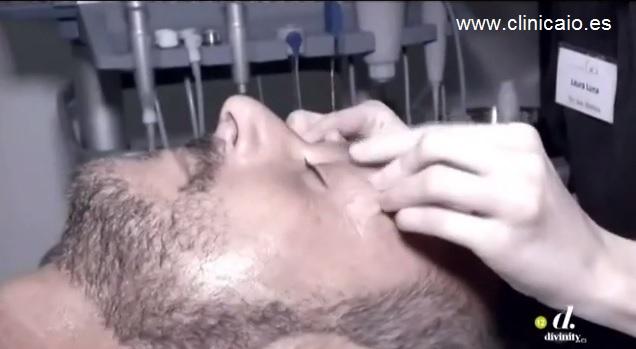 tratamiento facial flash para cazamariposas